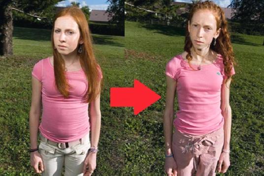 последствия похудения в подростковом возрасте